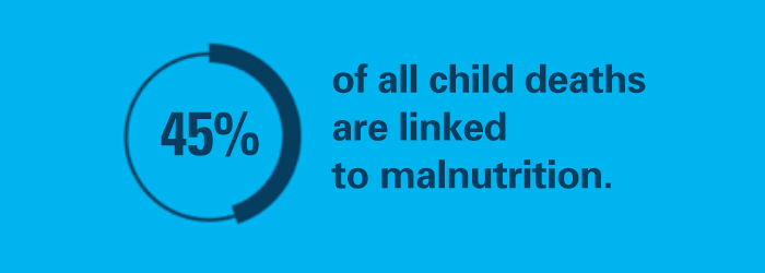 Child malnutrition statistic: 45% of all child death are linked to malnutrition