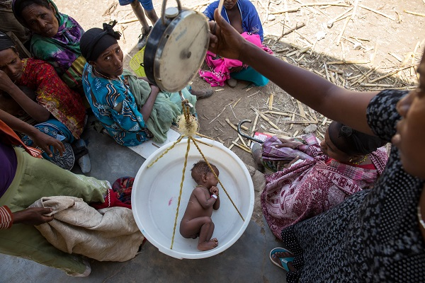 Children are suffering from malnutrition as a result of El Nino'seffects