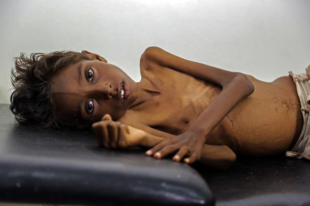 A five-year-old Yemeni boy suffers from severe acute malnutrition