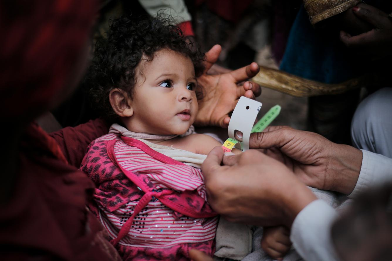 a baby receives treatment in Yemen